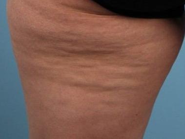 cellulit na nogach